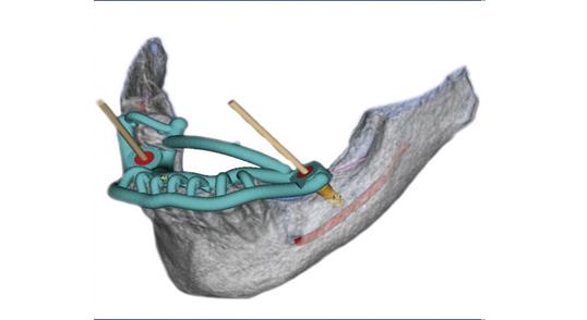Tand Implantat med 3D / SMOP
